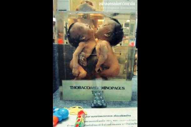 พิพิธภัณฑ์กุมารศัลยศาสตร์